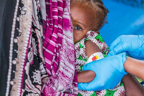 Allarme carestie: fame, malnutrizione e come il WFP affronta questa mortale pandemia